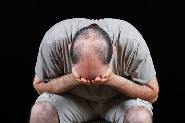 Sad man worrying about hair loss problem